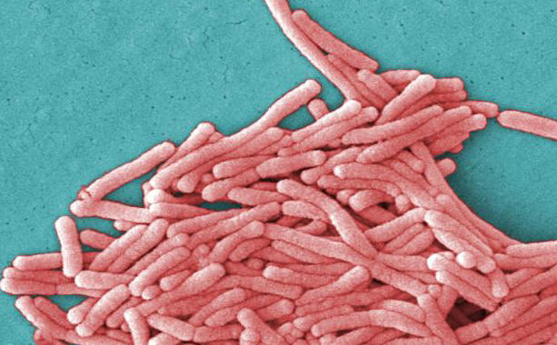 Legionnaires Disease from Air Conditioning